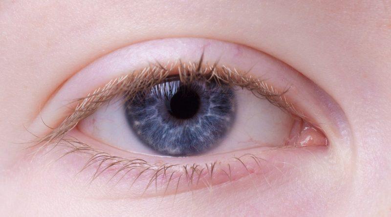 Augenerkrankung